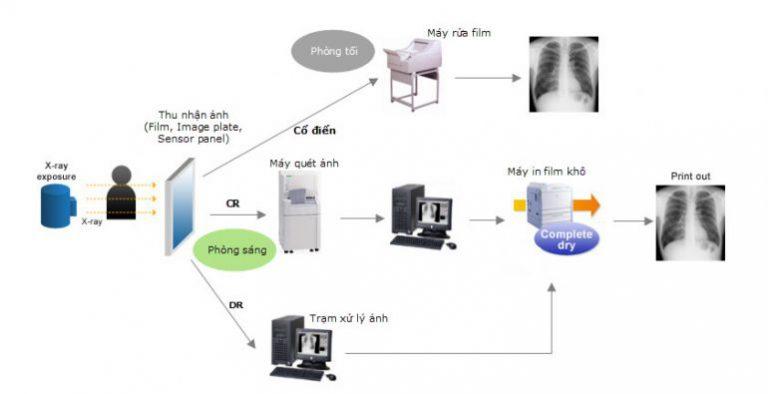Mô tả quá trình và sự khác biệt cơ bản giữa X quang cổ điển, CR và DR